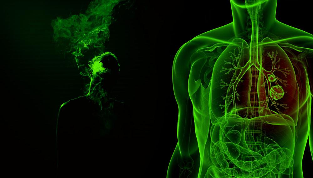marijuana and lung cancer